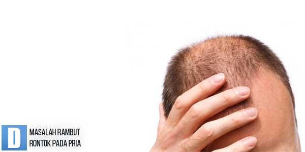 Masalah Rambut Rontok, Masalah Rambut Rontok Pada Pria, Masalah Kerontokan Rambut, Obat Rambut Rontok, Shampo Rambut Rontok, Hair Tonic Untuk Rambut Rontok