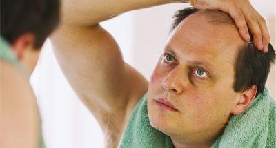 Penyebab Rambut Rontok Pada Pria dan Cara Mengatasinya. penyebab rambut  rontok 5e97556b91