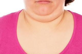 Double menton: Trois remèdes miracles vous ignorez