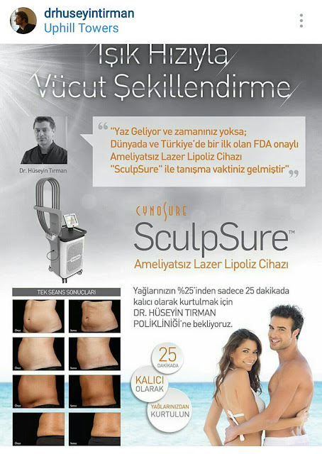 Vucut-sekillendirme-sculpsure