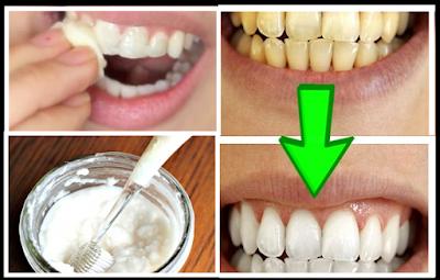 وصفة قوية لتبييض الأسنان الصفراء