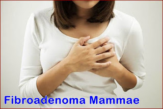 http://maulherbal.blogspot.co.id/2017/07/obat-alami-untuk-sembuhkan-fibroadenoma.html