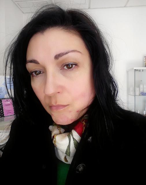 tratamiento-contra-el-acne
