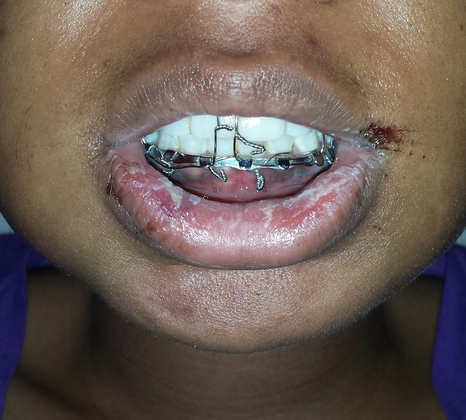 Through the Wire: Journey With My Jaw Wired Shut and After ... on wiring a fractured jaw, wired shut, how surgeons wire jaws shut,