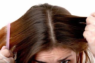 10 Cara Alami Menghilangkan Kutu Rambut