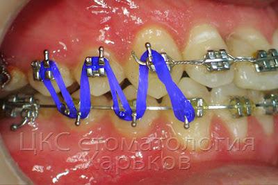 Ортодонтические эластики — активный элемент