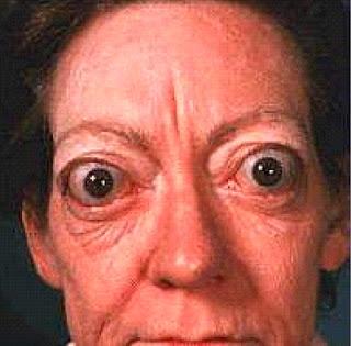 Gozzo tossico diffuso-Malattia di Graves-Basedow
