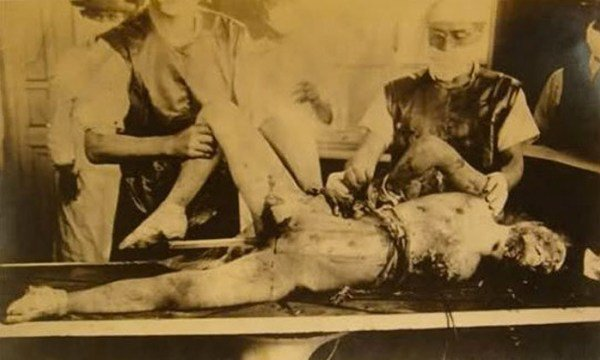 Μονάδα 731: Το πιο αποτρόπαιο έγκλημα του ανθρώπινου είδους