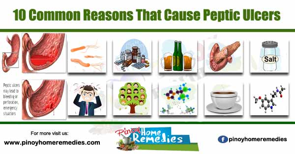 10 Common Reasons That Cause Peptic Ulcers