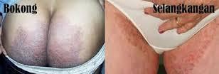 obat infeksi jamur kulit ampuh pada sekitar selangkangan dan pantat
