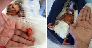 Μωρό γεννήθηκε 400 γραμμάρια και είναι ένα από τα μικρότερα στον κόσμο που επιβίωσαν - ΕΙΚΟΝΕΣ