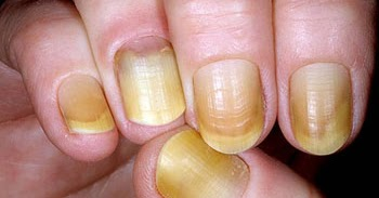 Yellow fingernails vitamin deficiency - Awesome Nail B12 Deficiency Nails