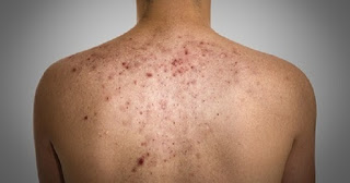 3 Home Remedies You Can Use On How to Remove Back Acne Scars