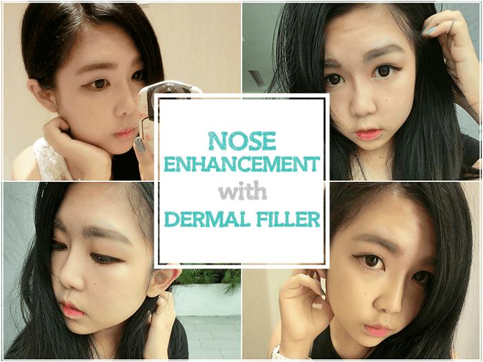 Asian flat nose yahoo dating 1