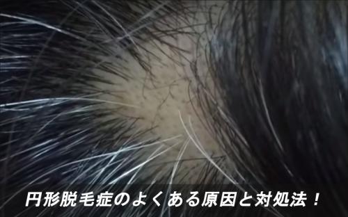 円形脱毛症のよくある原因3つと対処法!
