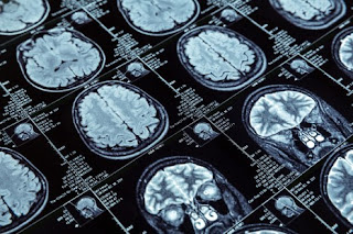 Medical Imaging Software showing the images of brain after scan. Multiple scanned images with medical notes and values.