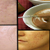 Miracle Cream to Remove Scar Naturally and Permanently