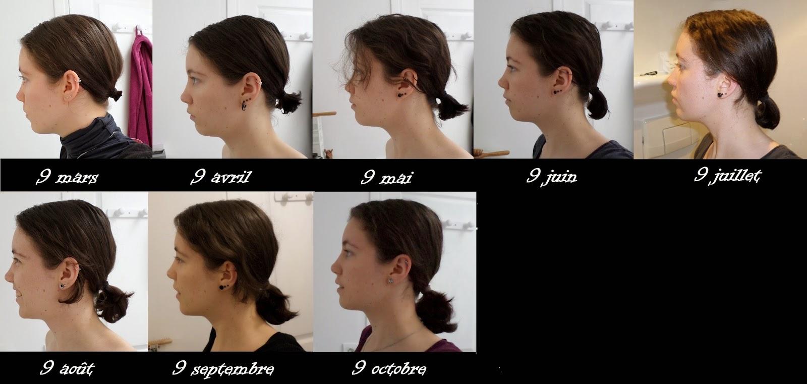 Préférence Pousse De Cheveux Homme - Fashion Designs EO39