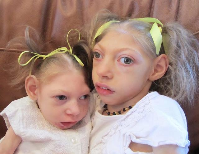 Alerta microcefalia es causada por una vacuna y no por virus zika