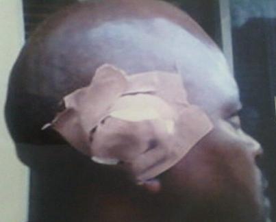 woman arrested cut neighbour ear