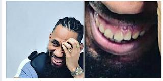 https://umahiprince.blogspot.com/2017/09/nigeria-dentist-sunday-nebeokike-advice.html