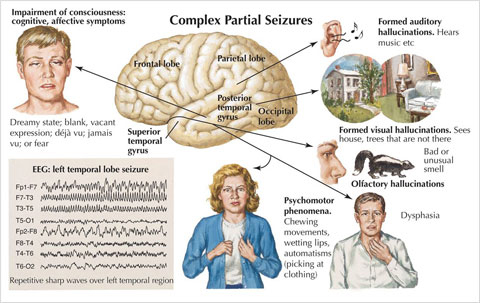 .Medical Academy: Epilepsy