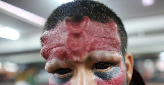 Έκοψε τη μύτη του και έκανε τατουάζ για να μοιάζει στον Red Skull!