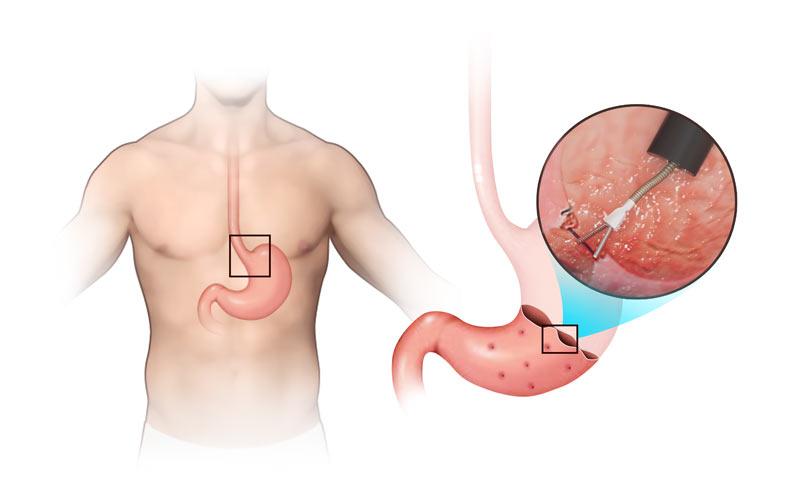 Sleeve Endoscopique bariatrique pour perdre du poids