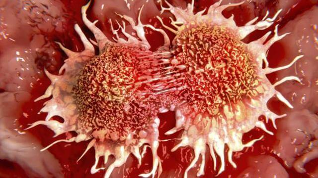 Pencegahan Penyakit Kanker