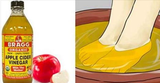 10 nouvelles utilisations du vinaigre de cidre ! Incroyable !