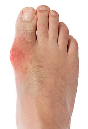 Best Tennis Shoes For Bunion Pain