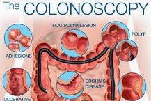 Diet Before Colonoscopy