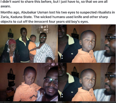 Has Kaduna State government abandoned boy whose eyes were plucked out?
