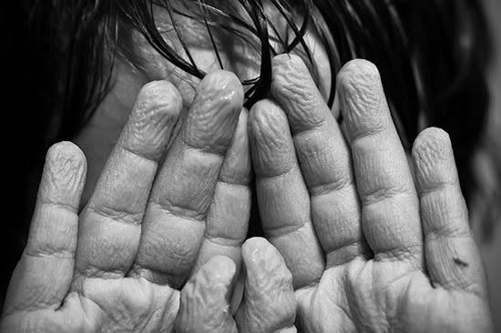 dedos enrrugados