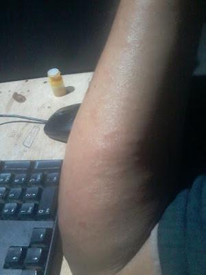 gatal biang keringat atau alergi