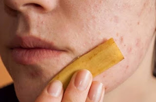 Banana Peel for acne scars on face