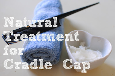 Natural Treatment For Cradle Cap Feathers In Our Nest