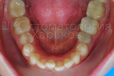 неровные зубы нижней челюсти, дефицит места 3 мм