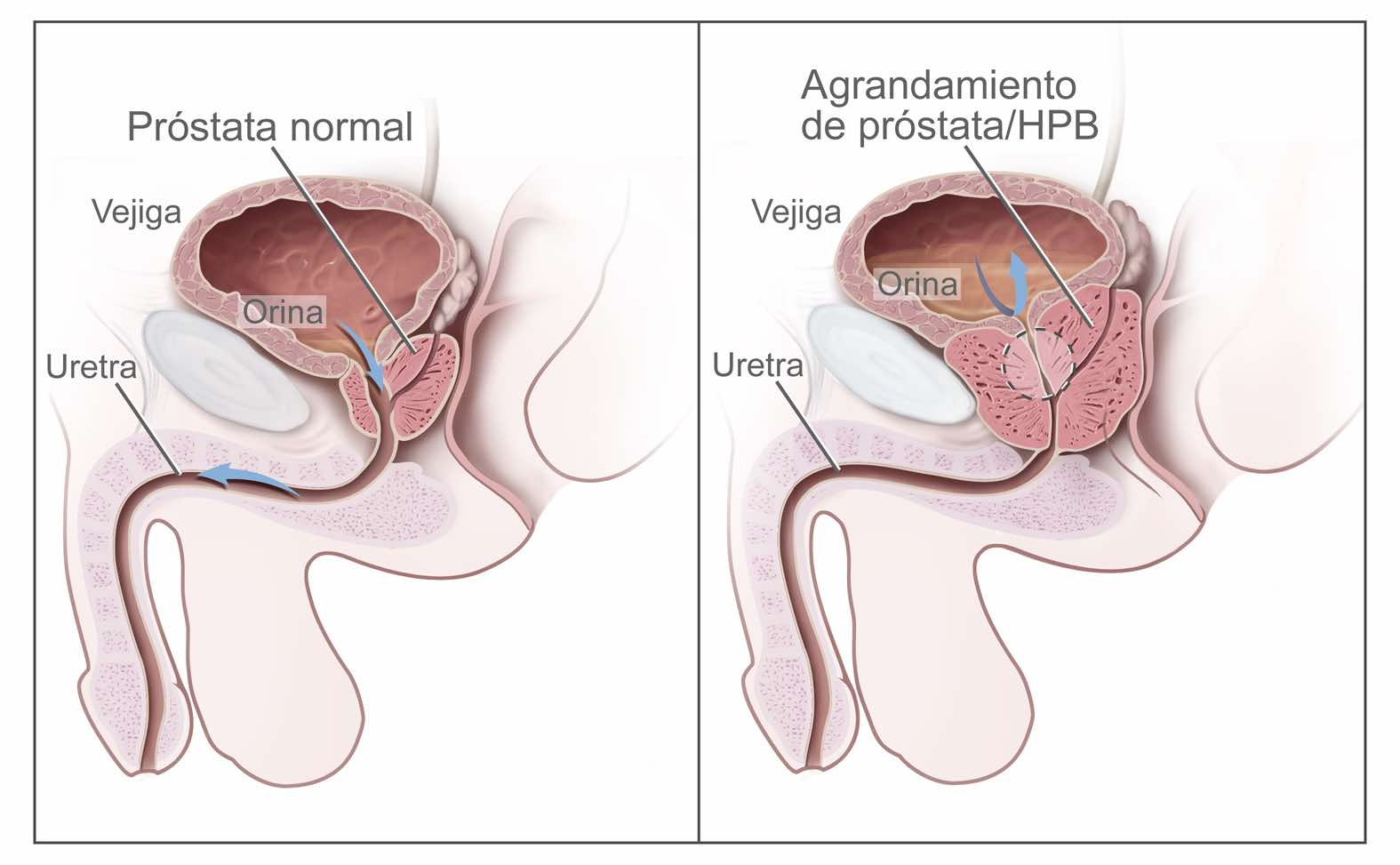 testimonios de cancer de prostata