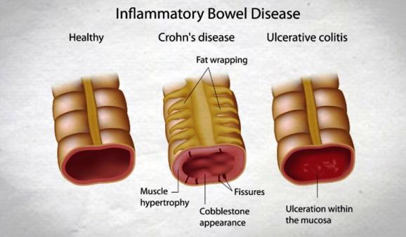 Inflammatory Bowel Disease, IBD