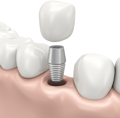 Implant Dentist In Maple Grove MN | Dental Implants Can Change Your Life