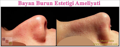 Rhinoplasty Istanbul - Rhinoplasty in Istanbul - Rhinoplasty Turkey - Rhinoplasty in Turkey – Rhinoplasty doctor in Istanbul – ENT doctor in Istanbul - Nose Job in Istanbul - Female Nose Aesthetic Surgery - Nose Jobs For Women - Nose Reshaping for Women - Best Rhinoplasty For Women Istanbul - Female Rhinoplasty Istanbul - Nose Job Surgery for Women - Women's Rhinoplasty - Nose Aesthetic Surgery For Women - Female Rhinoplasty Surgery in Istanbul - Female Rhinoplasty Surgery in Turkey