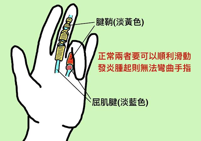 好痛痛 板機指 屈肌腱 腱鞘 滑車韌帶 發炎 腫脹 卡住 手指痛 手指不能動