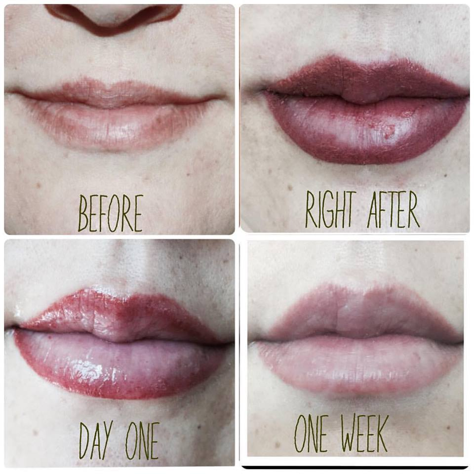 Anyone had lip injections/ filler? (Page 1) — Beauty and
