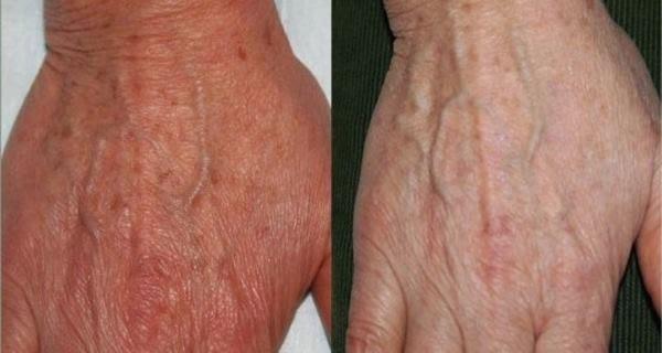 petele de batranete de pe piele pot fi eliminate printr-o metoda naturala chinezeasca