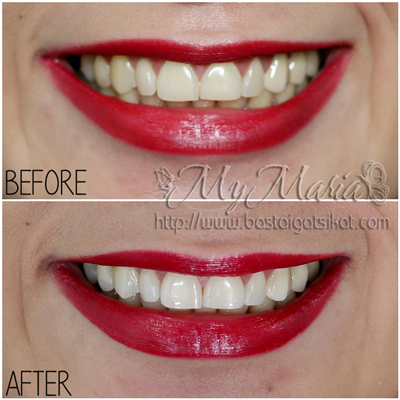 Review Teeth Whitening With Crest 3d White Whitestrips Basta