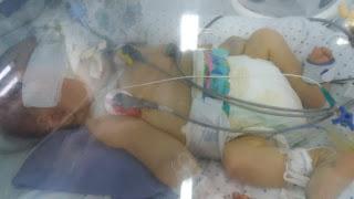Mãe de Bebe Arthur que nasceu com Cardiopatia Congênita pede ajuda