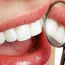 Mengetahui Jenis Serta Harga Gigi Palsu Terbaru Dan Terlengkap 2018