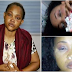 CAN THIS BE TRUE? Atlast!! Mercy Aigbe Finally releases video of her battered face to show she indeed suffered domestic violence