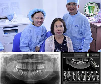 trong-rang-implant-o-dau